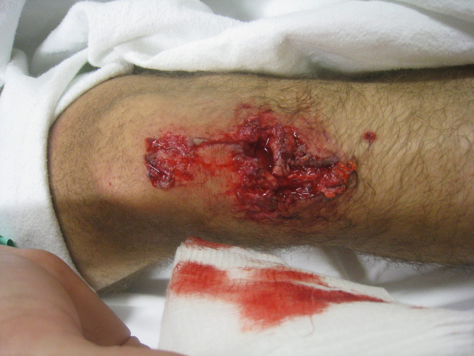 Why Cyclists Shave Their Legs.  The Most Disgusting Post I Will Ever Make